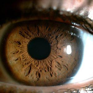 Scan of Yepez's eye